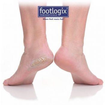 pes-footlogix
