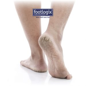 Pedicure Footlogix
