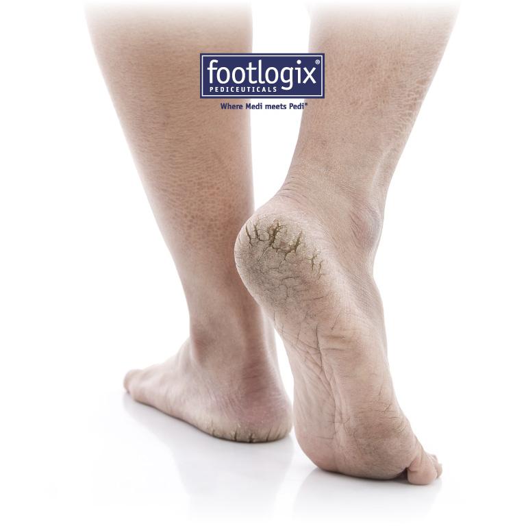 Pedicure Footlogix